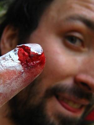 Dan, doigt éclaté en fissure